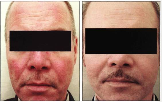 cirugia rejuvenecimiento facial arrugas