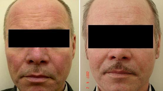 Фотоомоложение как влияет на кожу кистозные акне на спине лечение
